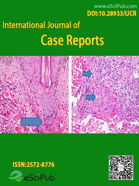 International Journal of Case Reports (ISSN:2572-8776)